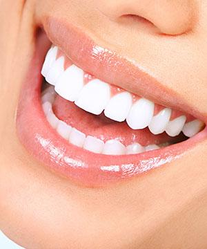 Smile Gallery - Allure Dental Center