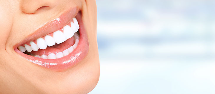 Why You Should Avoid Over the Counter Tooth Whitening