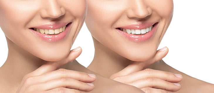 Yellow Teeth: Causes, Home Remedies, and Treatment Options Near Me in Mountain View, CA